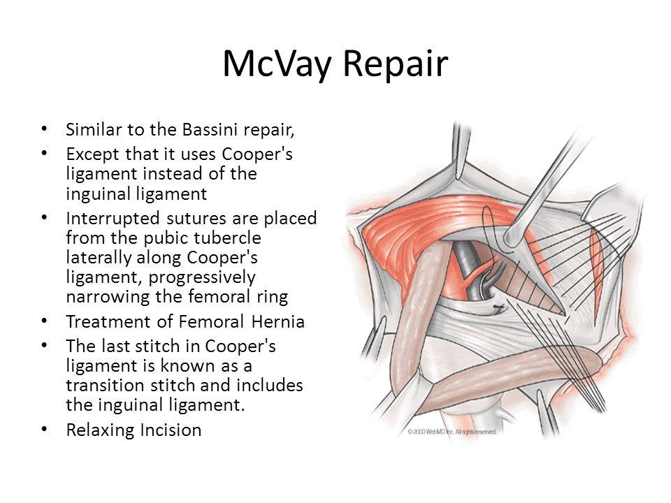 Open Inguinal & Ventral Hernia Repair Andrew Gassman 8/3 ...