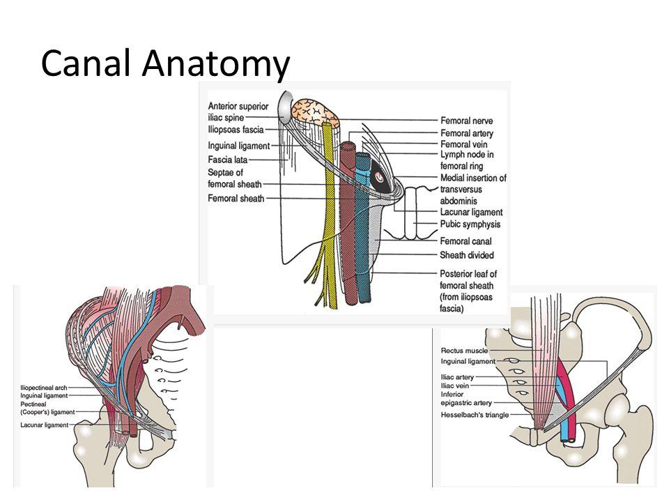 Ventral hernia anatomy