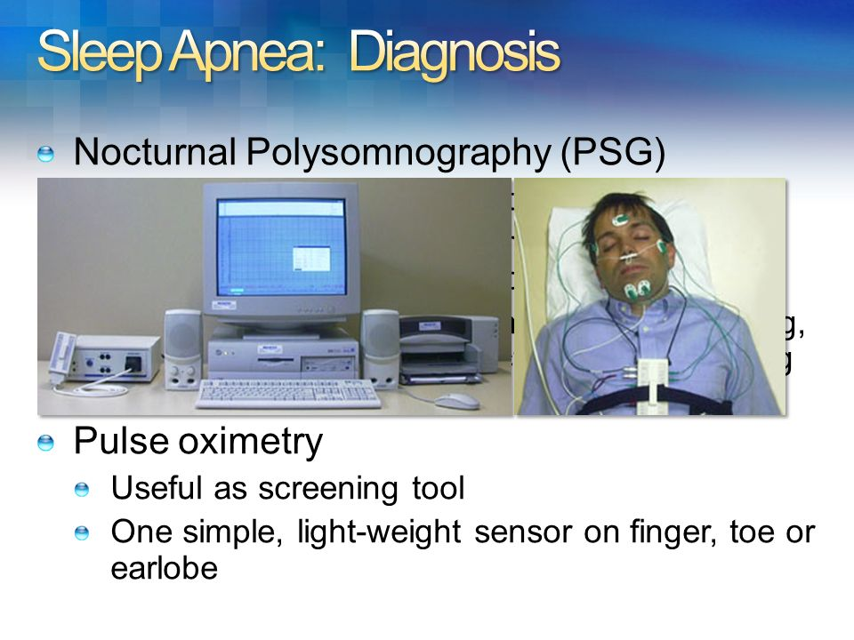 Sleep Apnea: Diagnosis