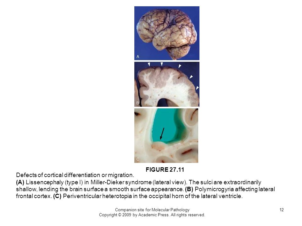 Defects of cortical differentiation or migration.
