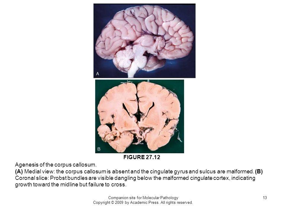 Agenesis of the corpus callosum.