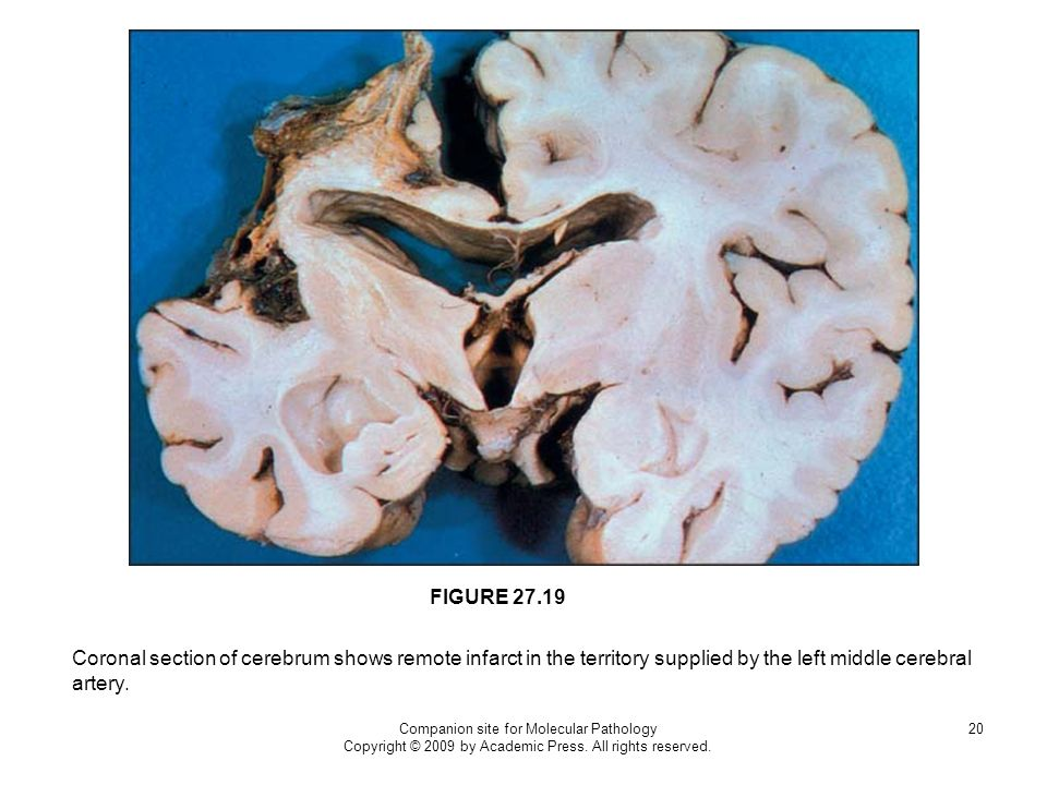 FIGURE Coronal section of cerebrum shows remote infarct in the territory supplied by the left middle cerebral artery.