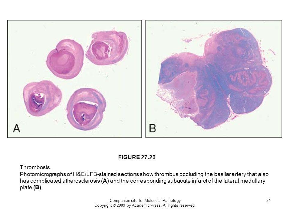 FIGURE 27.20 Thrombosis.