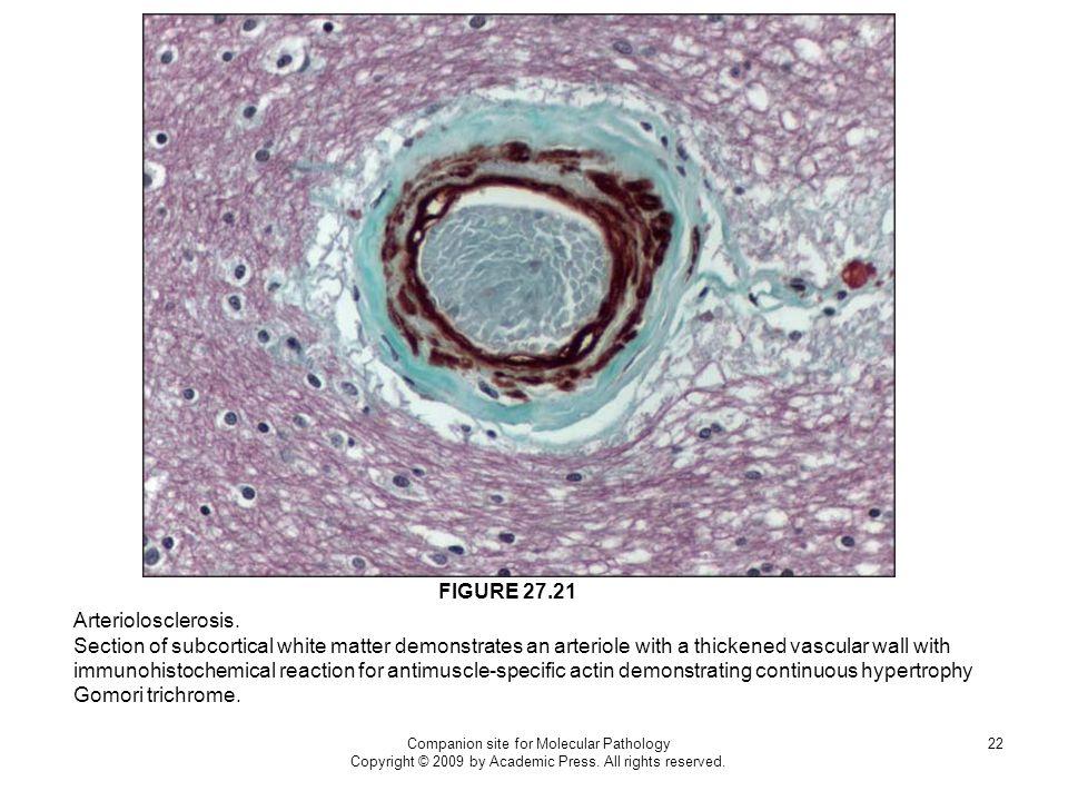 FIGURE 27.21 Arteriolosclerosis.