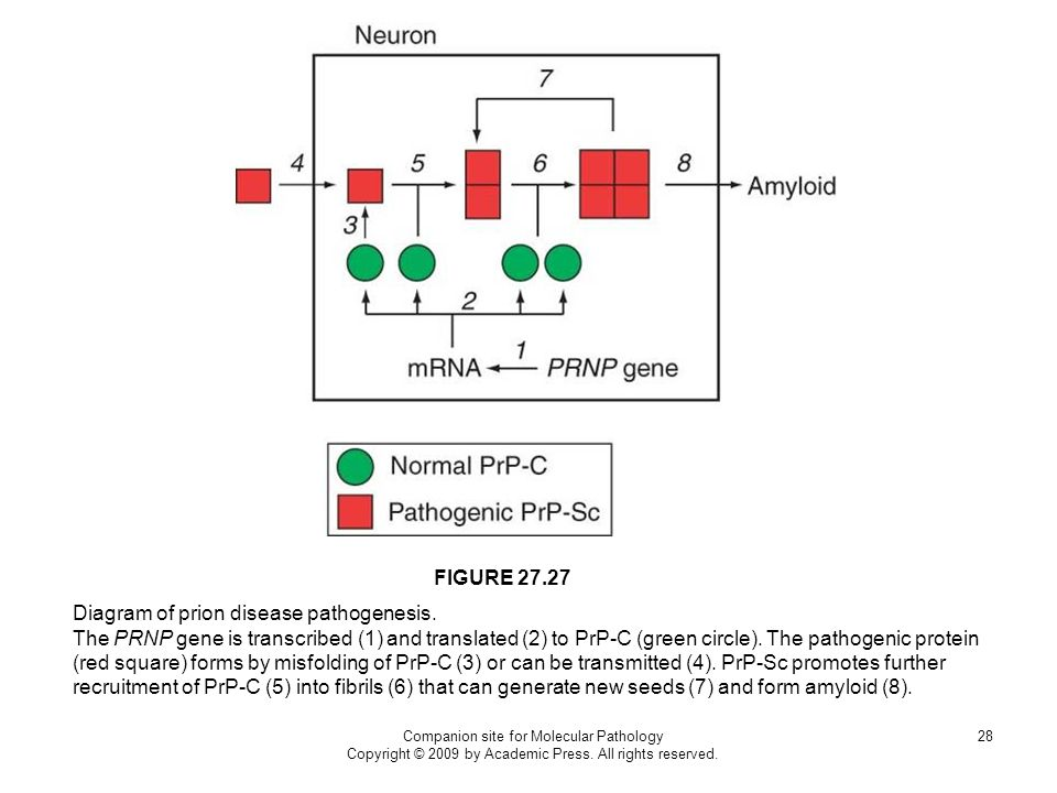 Diagram of prion disease pathogenesis.