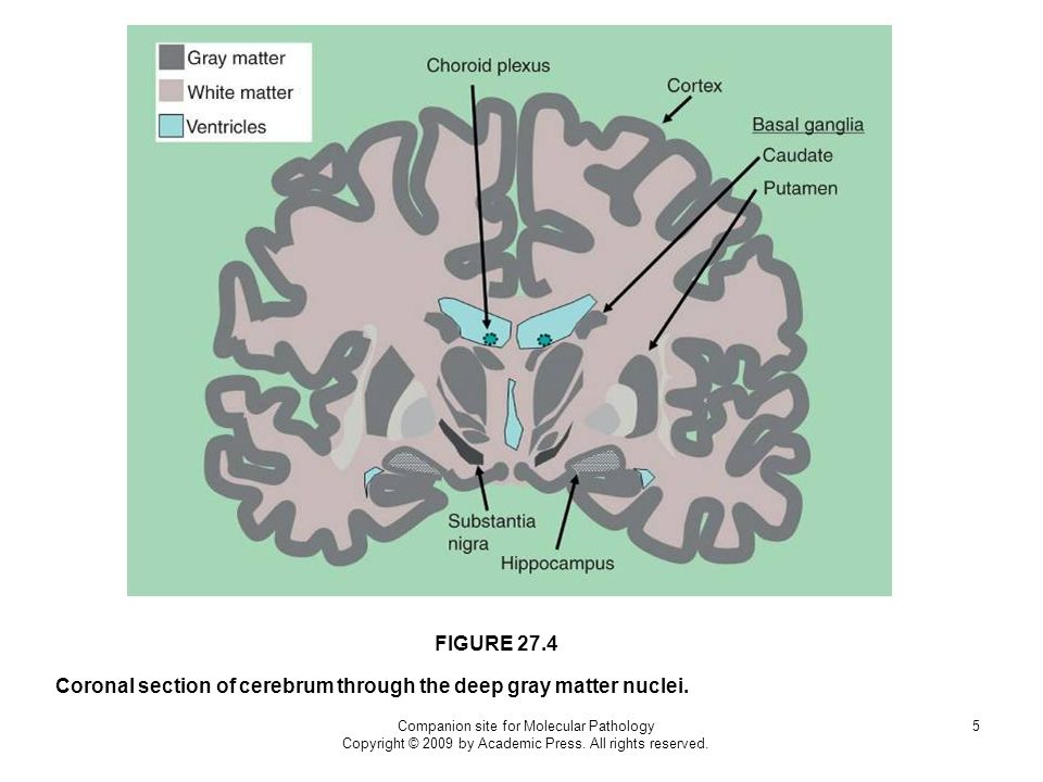 Coronal section of cerebrum through the deep gray matter nuclei.