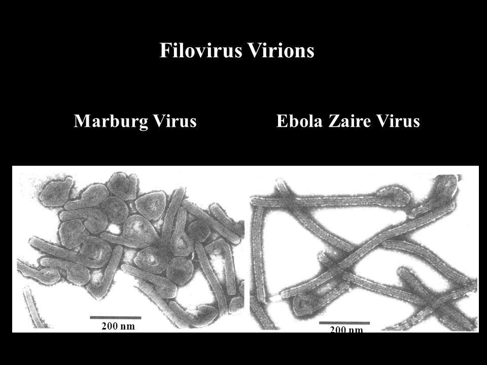 Filovirus Virions Marburg Virus Ebola Zaire Virus 200 nm 200 nm