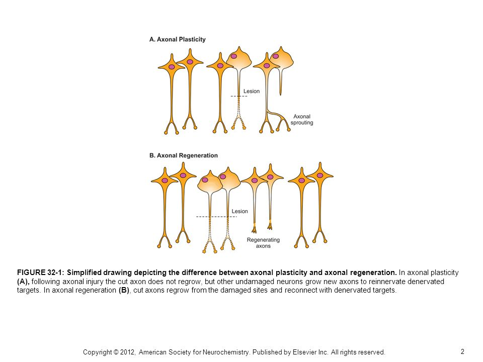 FIGURE 32-1: Simplified drawing depicting the difference between axonal plasticity and axonal regeneration. In axonal plasticity (A), following axonal injury the cut axon does not regrow, but other undamaged neurons grow new axons to reinnervate denervated targets. In axonal regeneration (B), cut axons regrow from the damaged sites and reconnect with denervated targets.