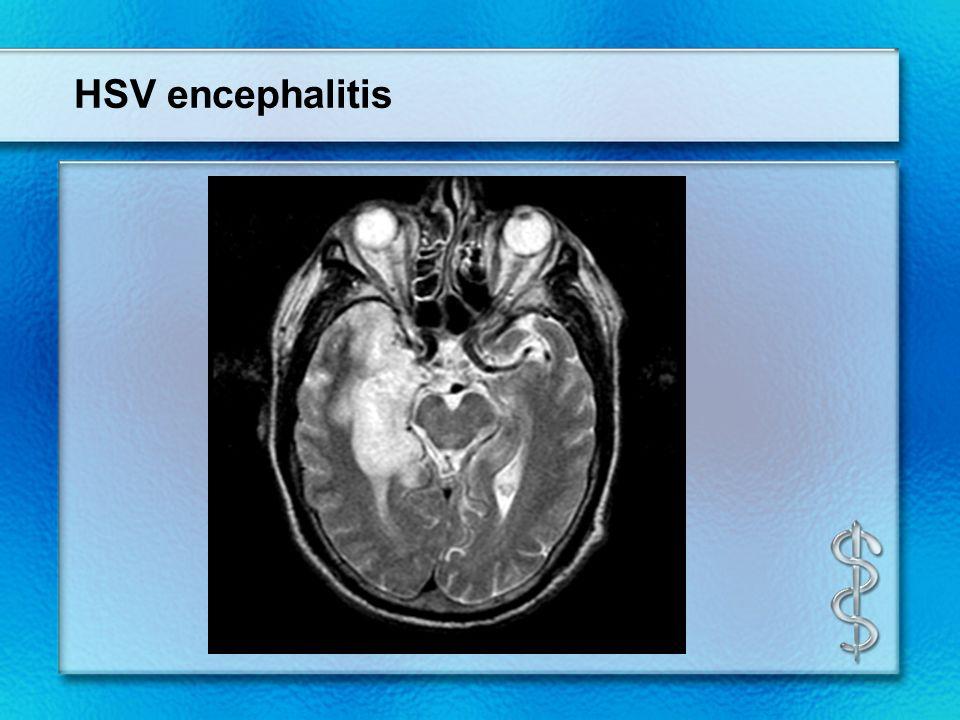 encephalitis s sears md ppt video online download