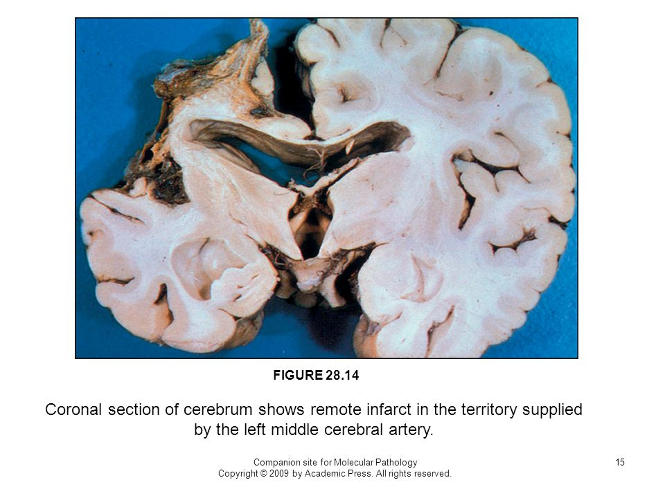 FIGURE 28.14 Coronal section of cerebrum shows remote infarct in the territory supplied by the left middle cerebral artery.