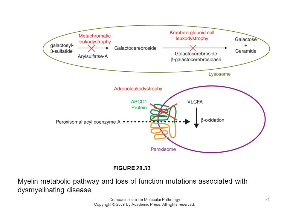 FIGURE 28.33 Myelin metabolic pathway and loss of function mutations associated with dysmyelinating disease.