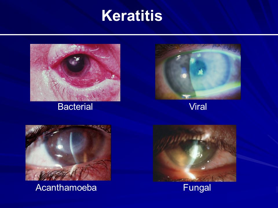 The Red Eye and Selected Ocular Emergencies