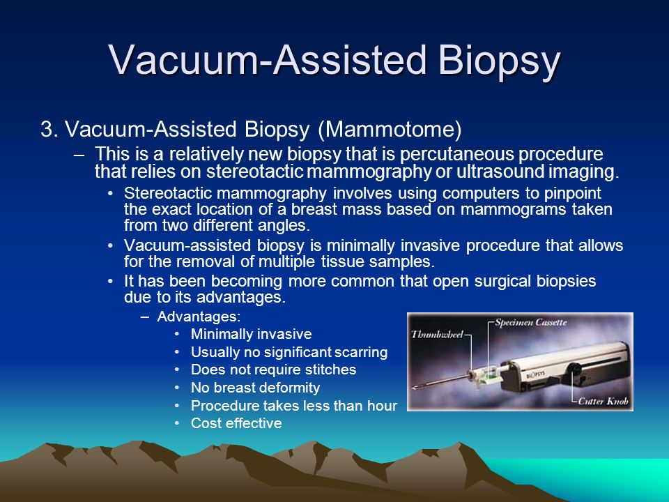 Vacuum-Assisted Biopsy