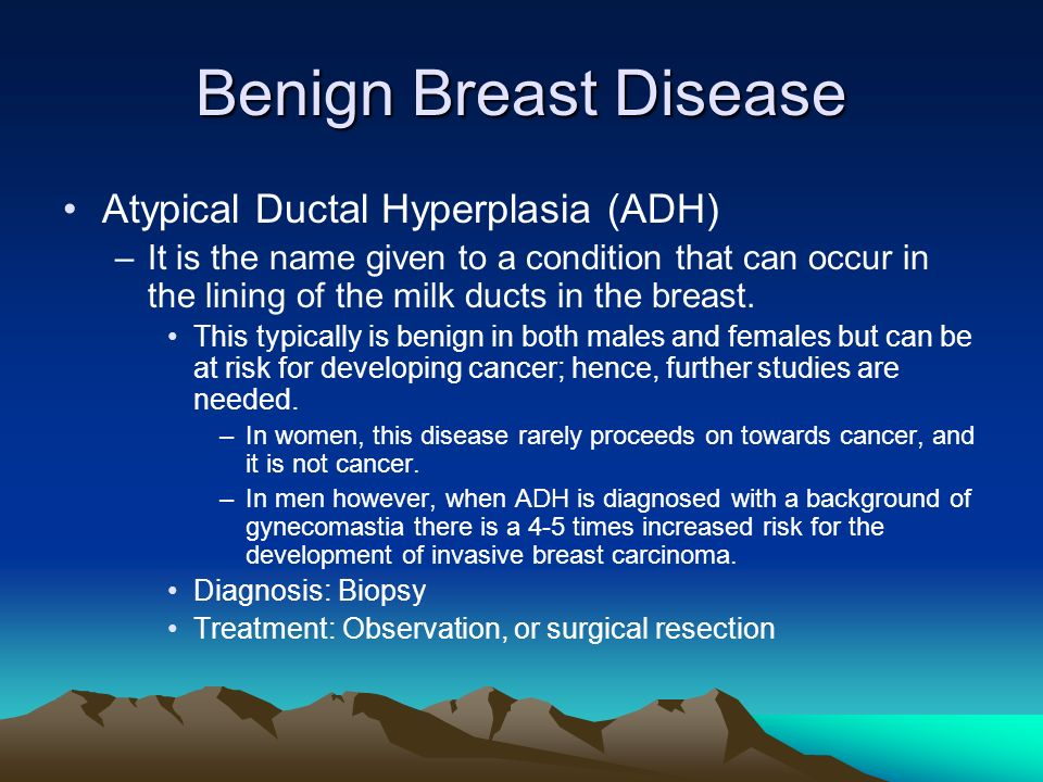 Benign Breast Disease Atypical Ductal Hyperplasia (ADH)