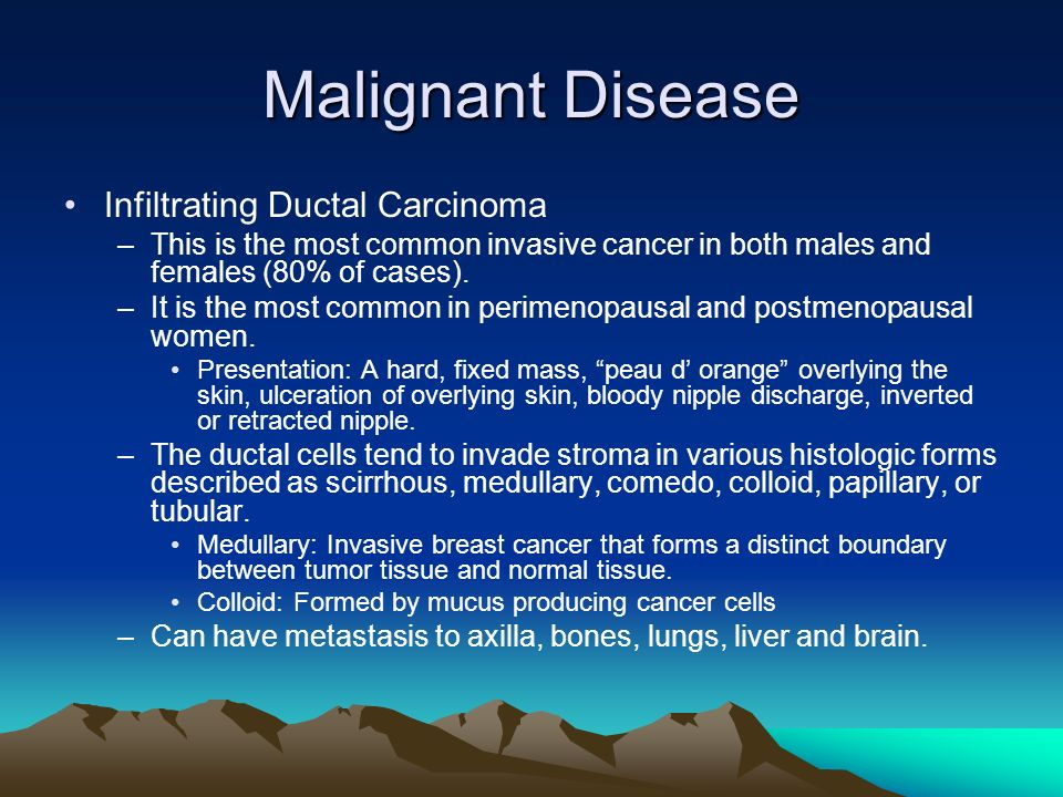 Malignant Disease Infiltrating Ductal Carcinoma