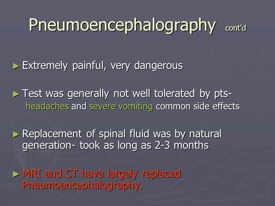 Myelography 9 30 10 Online Ed Ppt Video Online Download
