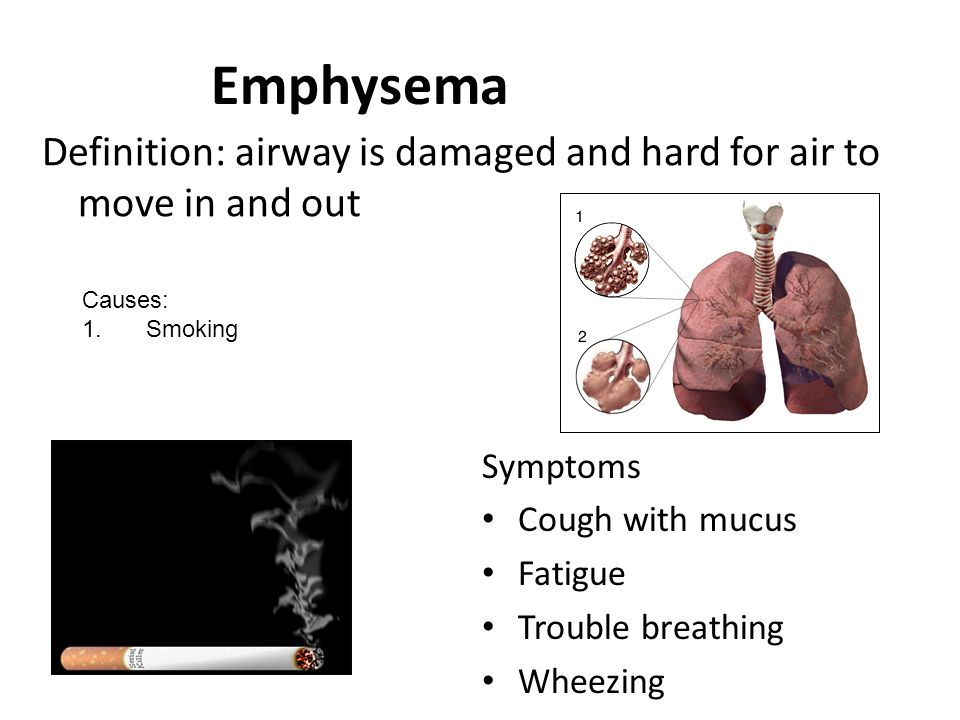 a description of diagnosis of symptoms cause and effect of emphysema Emphysema mostly affects regular users of tobacco products  emphysema is  an illness which is included in the broader diagnosis of chronic  if a smoker  stops smoking and receives treatment, it can slow the progression.
