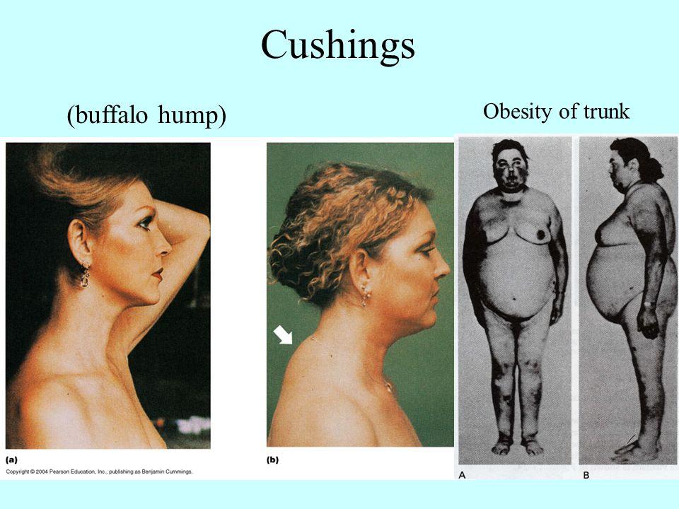 buffalo hump steroids
