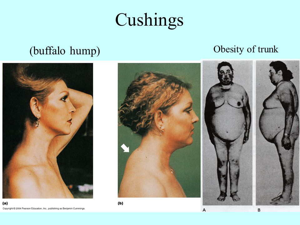 buffalo hump due to steroids