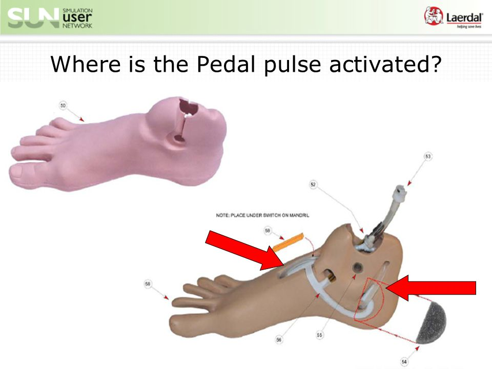 Where is the Pedal pulse activated