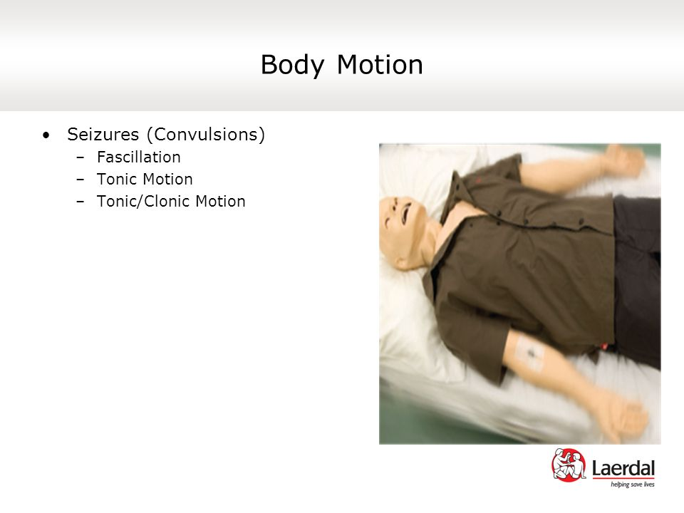 Body Motion Seizures (Convulsions) Fascillation Tonic Motion