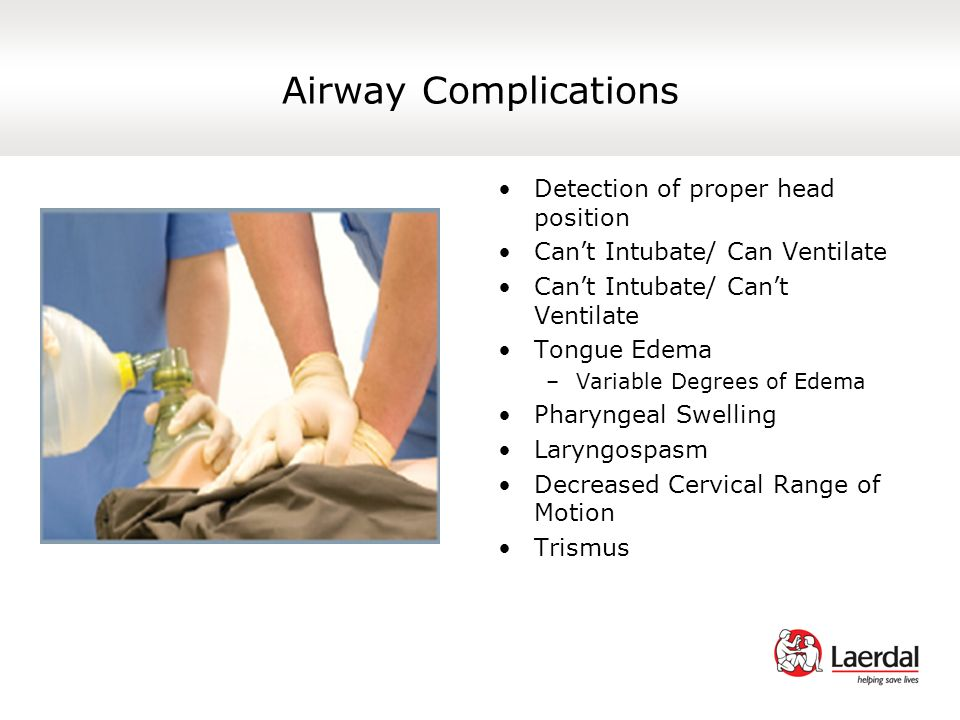 Airway Complications Detection of proper head position