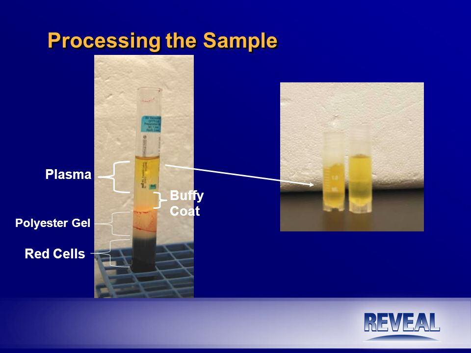 Processing the Sample Plasma Buffy Coat Polyester Gel Red Cells