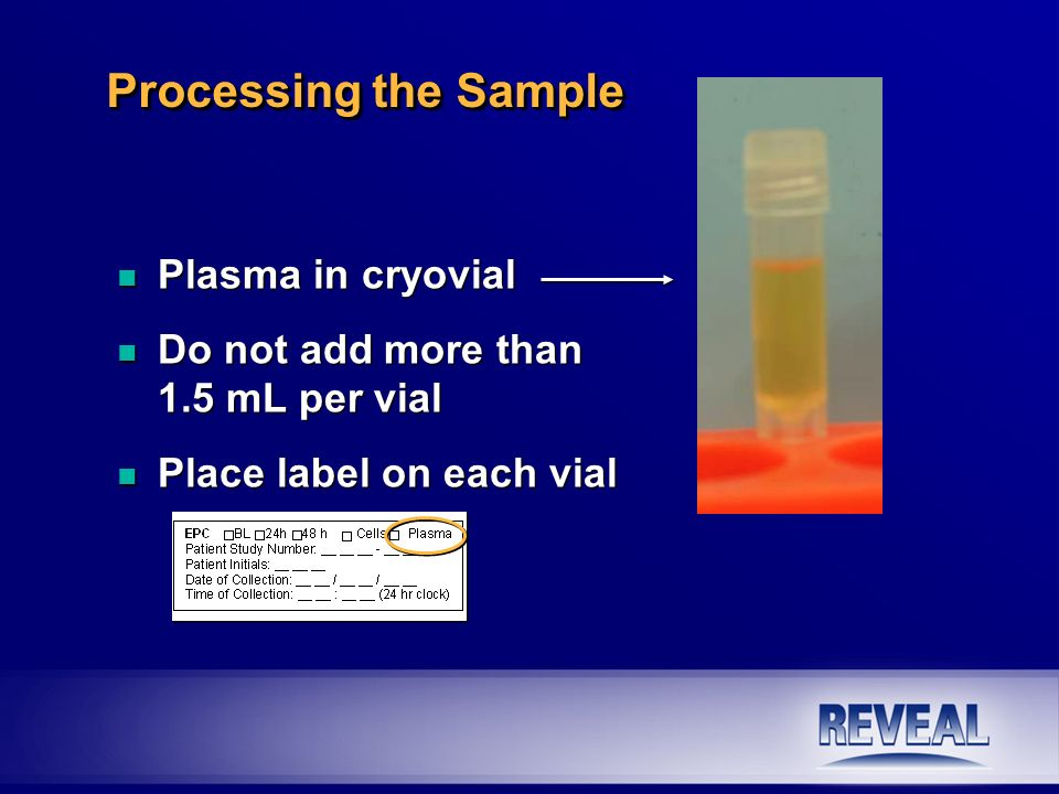 Processing the Sample Plasma in cryovial