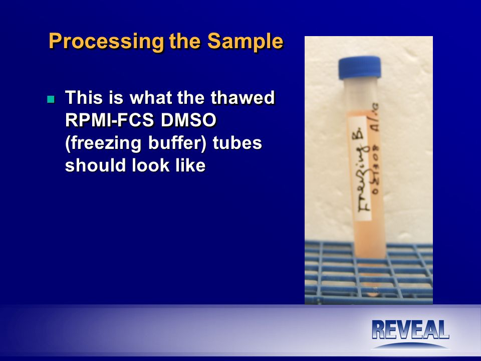 Processing the Sample This is what the thawed RPMI-FCS DMSO (freezing buffer) tubes should look like.
