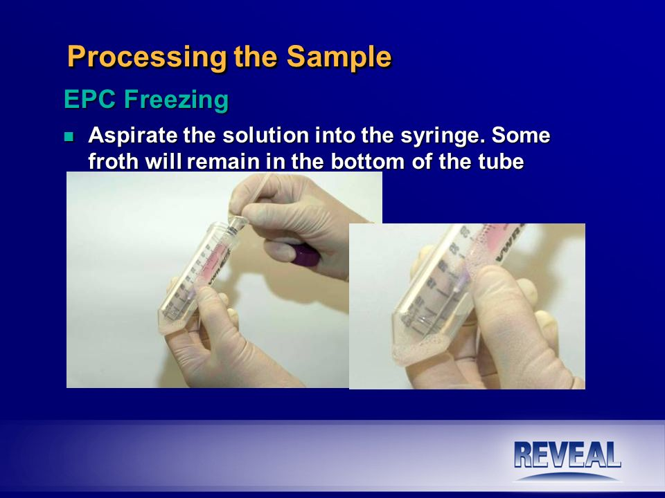 Processing the Sample EPC Freezing