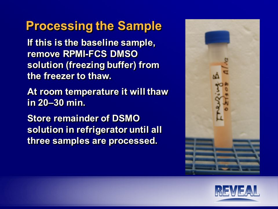 Processing the Sample If this is the baseline sample, remove RPMI-FCS DMSO solution (freezing buffer) from the freezer to thaw.