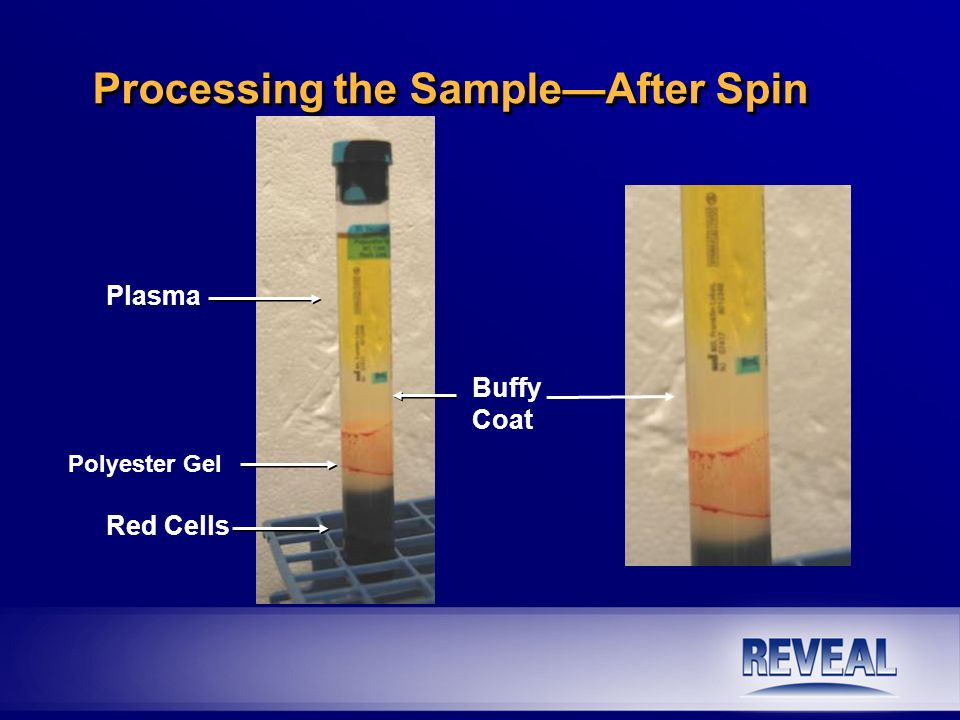 Processing the Sample—After Spin