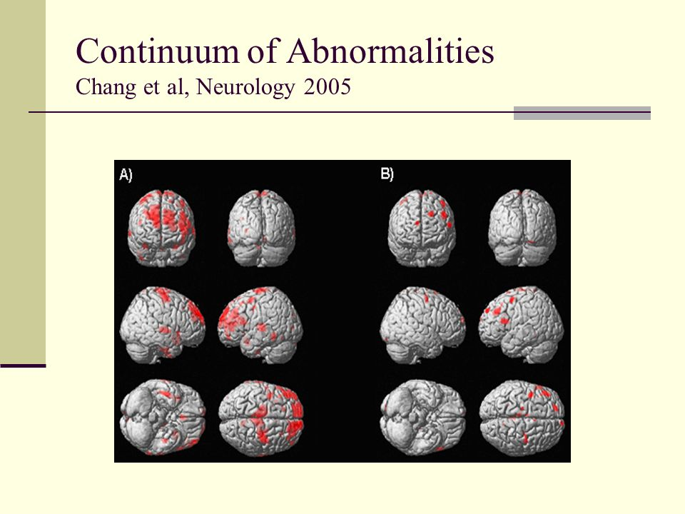 Continuum of Abnormalities Chang et al, Neurology 2005