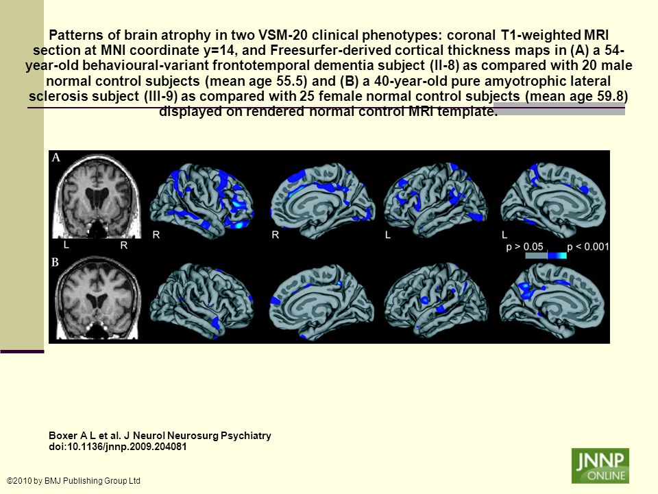 Patterns of brain atrophy in two VSM-20 clinical phenotypes: coronal T1-weighted MRI section at MNI coordinate y=14, and Freesurfer-derived cortical thickness maps in (A) a 54-year-old behavioural-variant frontotemporal dementia subject (II-8) as compared with 20 male normal control subjects (mean age 55.5) and (B) a 40-year-old pure amyotrophic lateral sclerosis subject (III-9) as compared with 25 female normal control subjects (mean age 59.8) displayed on rendered normal control MRI template.