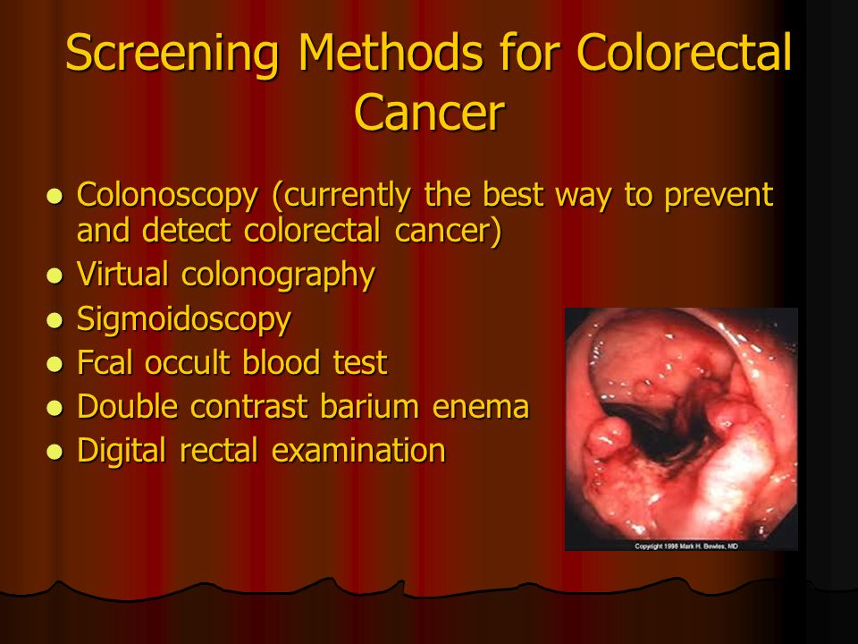 Interventions For Clients With Colorectal Cancer Ppt