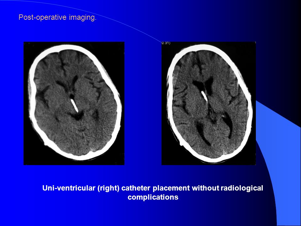 Post-operative imaging.