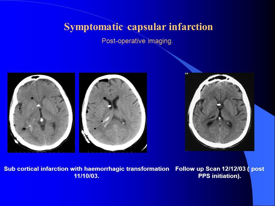 Symptomatic capsular infarction