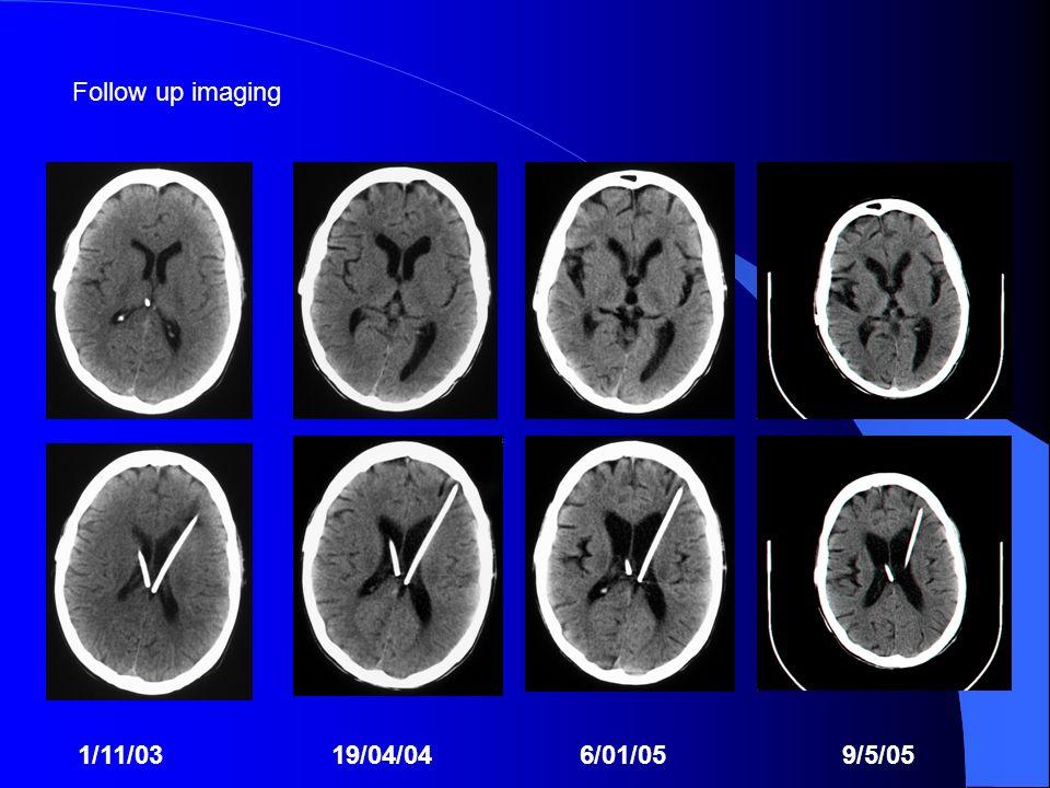Follow up imaging 1/11/03 19/04/04 6/01/05 9/5/05.