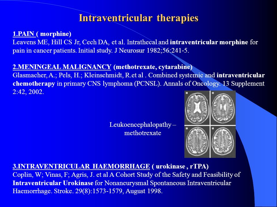 Intraventricular therapies