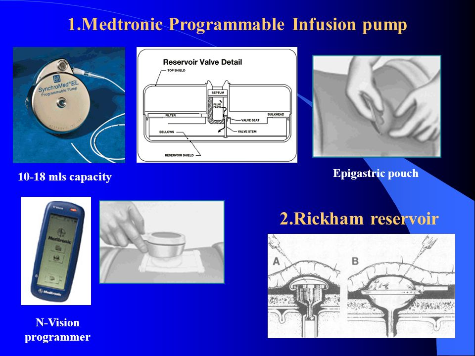1.Medtronic Programmable Infusion pump