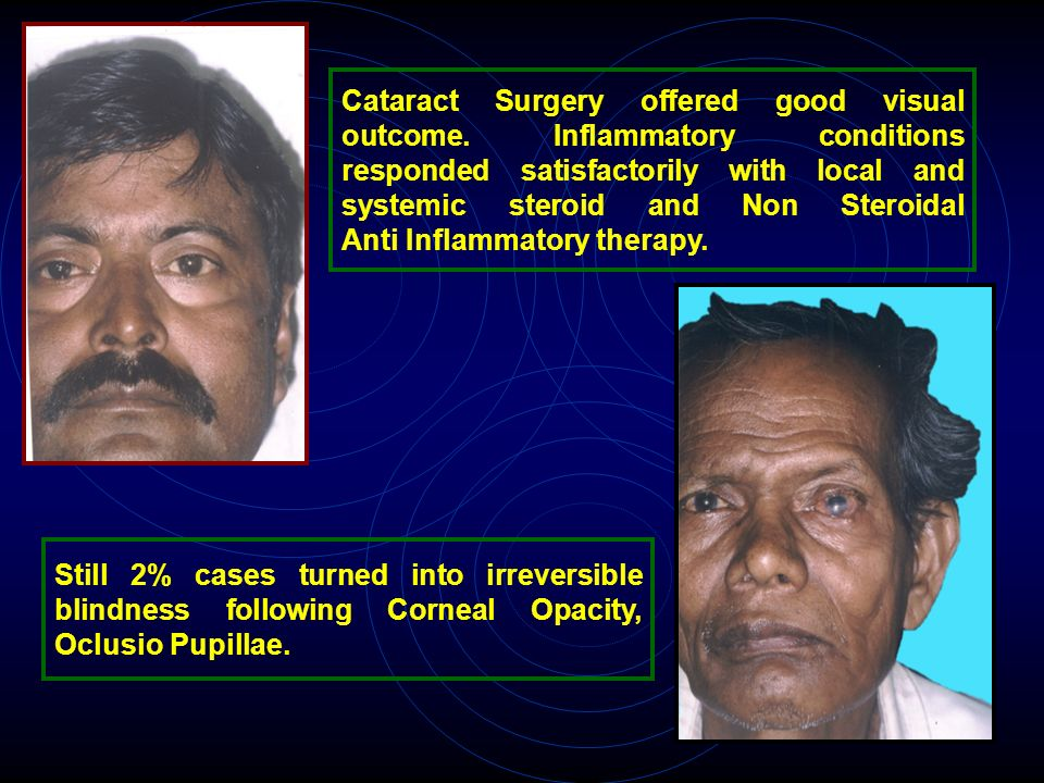 Cataract Surgery offered good visual outcome