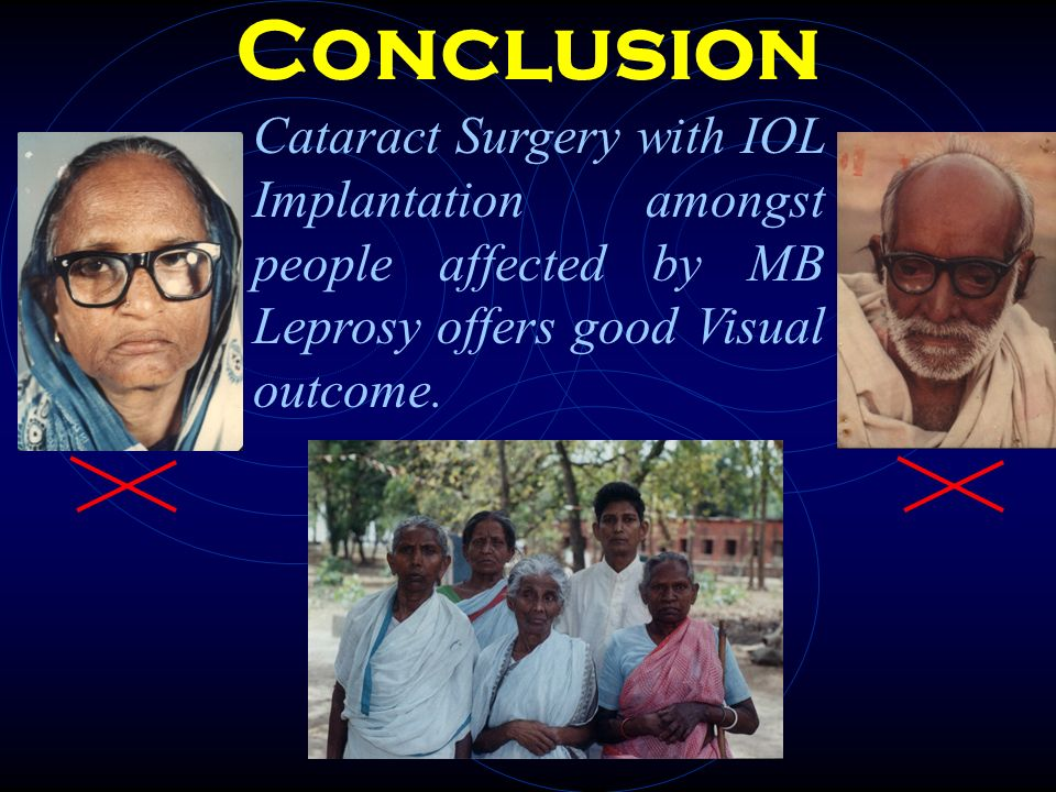 Conclusion Cataract Surgery with IOL Implantation amongst people affected by MB Leprosy offers good Visual outcome.