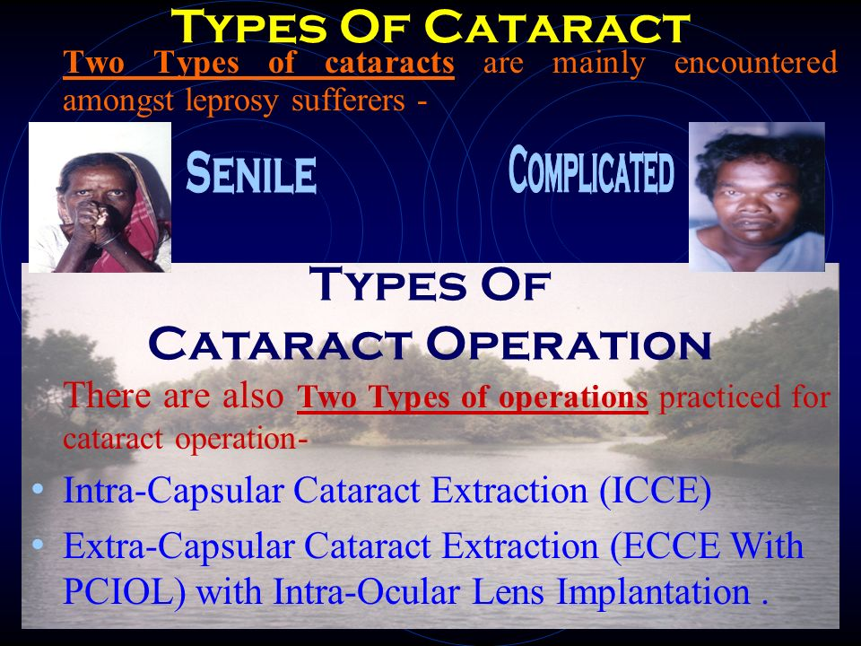 Types Of Cataract Types Of Cataract Operation Complicated Senile