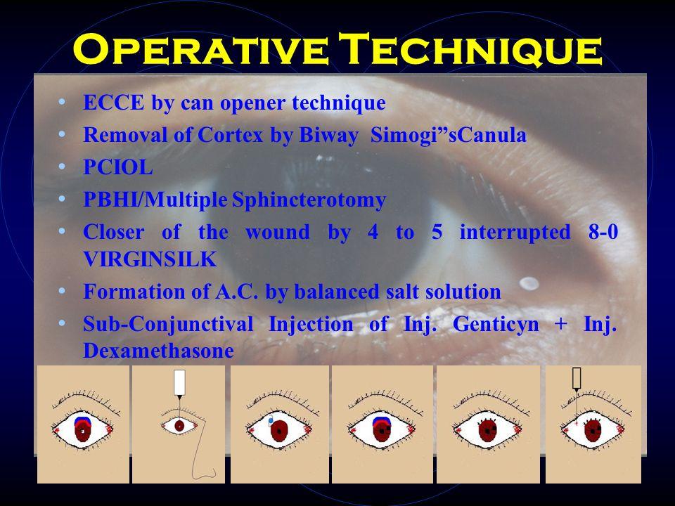 Operative Technique ECCE by can opener technique