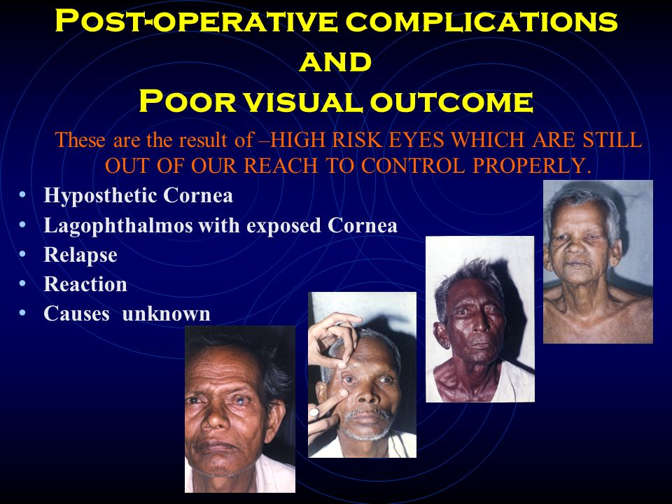 Post-operative complications and Poor visual outcome