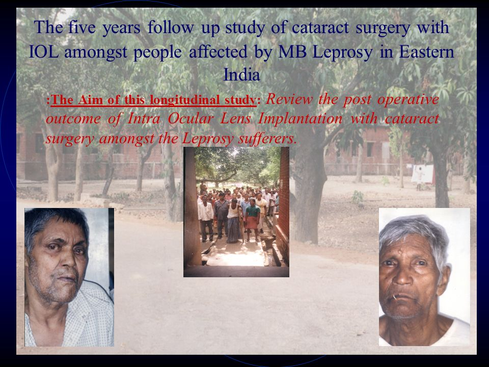 The five years follow up study of cataract surgery with IOL amongst people affected by MB Leprosy in Eastern India