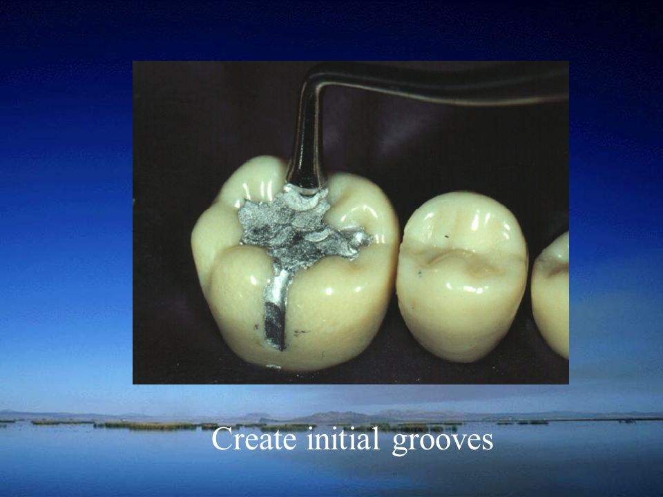 Create initial grooves