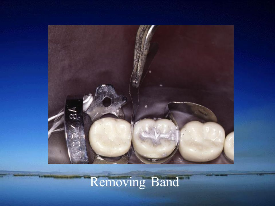 Removing Band