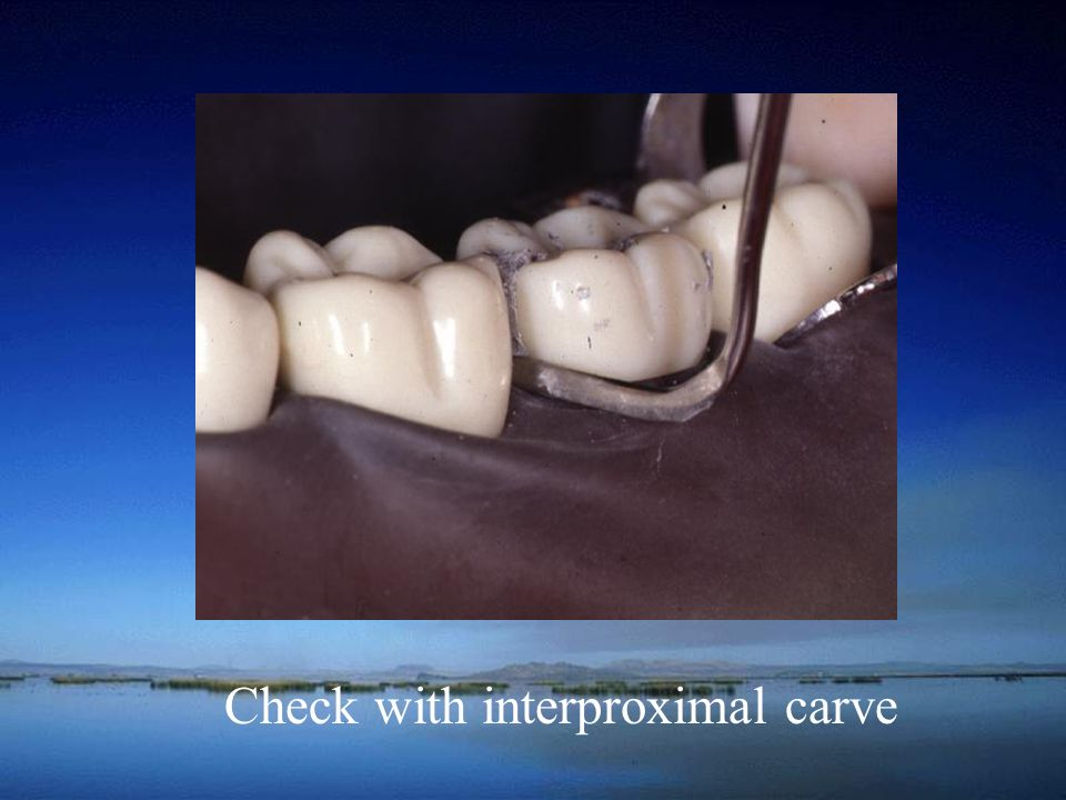 Check with interproximal carve