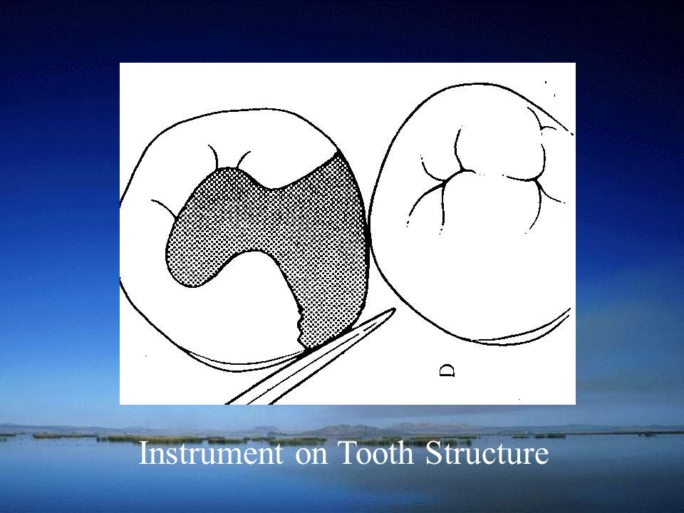 Instrument on Tooth Structure